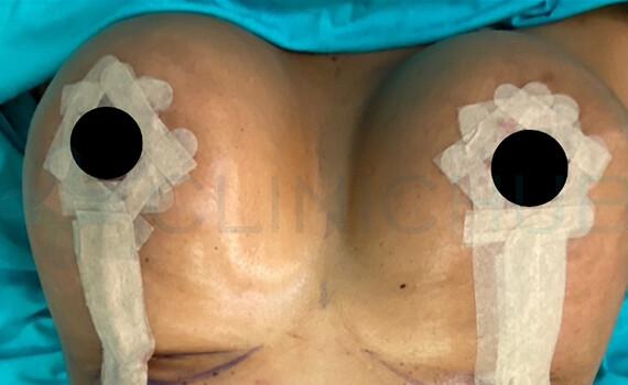 Breast-d1